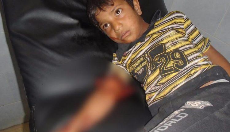 طفلان جريحان نتيجة انفجار قنبلة مزروعة بالشهباء